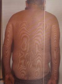 脊柱菅狭窄症の腰 (曲がった背骨)