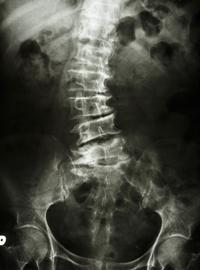 脊柱菅狭窄症の腰(変形した背骨のX線画像)