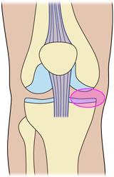 医療用膝サポーター/ファシリエイドサポーター/適応の痛み