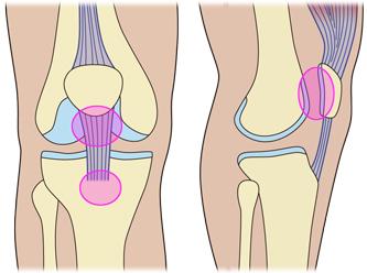整骨院が販売する膝サポーター/ニーレスキュークロスサポート/適応の痛み