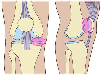 整骨院が販売する膝サポーター/ニーブレイス/適応の痛み