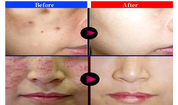 皮膚お手入れから生まれた細胞レベルの美肌ケア