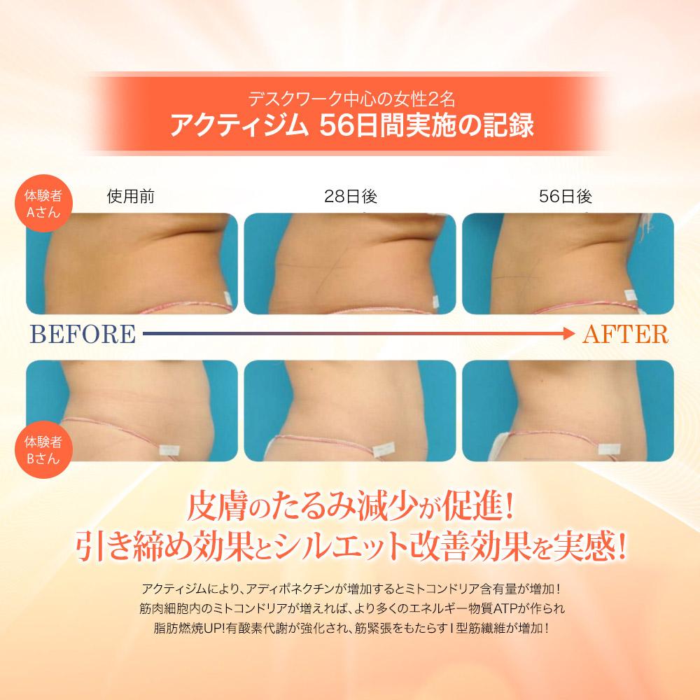 脂肪蓄積の軽減 レスベラトロール配合