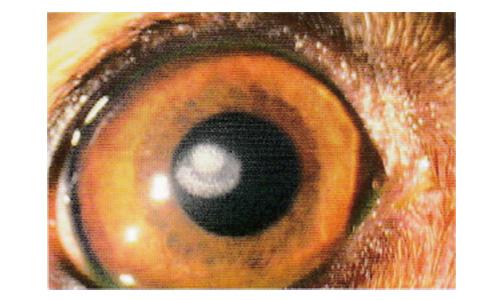 角膜 ジストロフィー